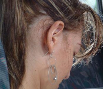 Seis conceitos importantes sobre a otoplastia