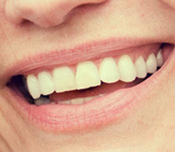 Esclareça suas dúvidas sobre implantes dentários