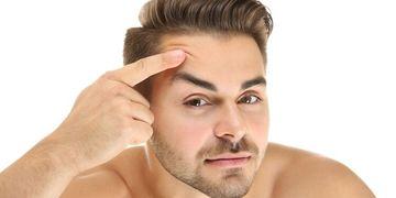Confira tratamentos para eliminar as rugas da testa