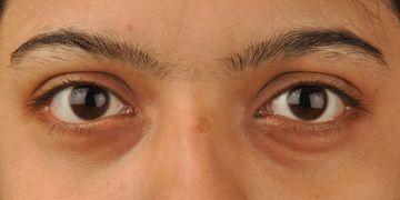 Como combater as olheiras em cada idade