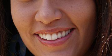 Tire suas dúvidas sobre a cirurgia maxilofacial