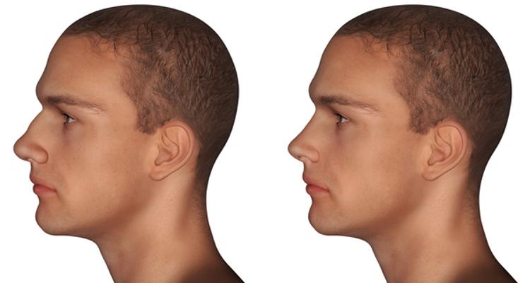 Simulação 3D no consultório de cirurgia plástica: a consulta moderna