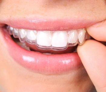 Aparelho invisível: consiga um sorriso perfeito com o Invisalign