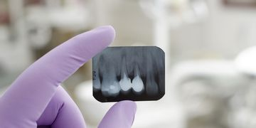Conheça os tipos de reconstrução dental