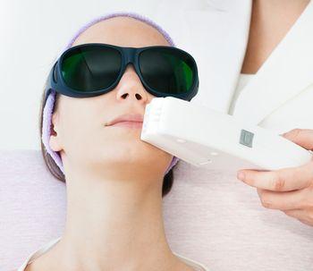 Depilação facial a laser