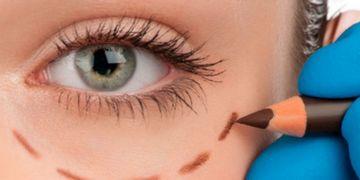 Blefaroplastia: conselhos para um pós-operatório seguro