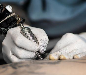Elimine tatuagem, mancha e micropigmentação com laser Q-Switched N-yag