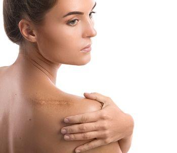 Células-tronco ou PRP: tratamentos para as cicatrizes