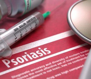 Os melhores tratamentos para a psoríase