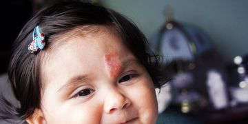 Lesões vasculares infantis: os hemangiomas