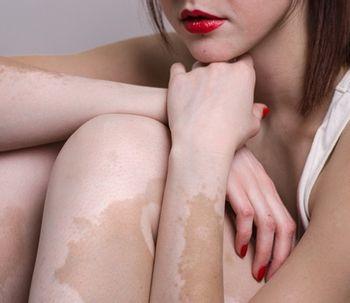 Tudo sobre vitiligo
