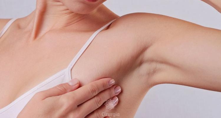 MiraDry: um tratamento eficaz para eliminar o suor excessivo