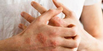 Há quantos tipos de dermatite?