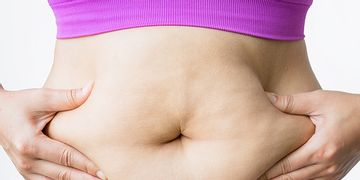 Tipos de abdominoplastia: qual é o mais adequada para cada caso?