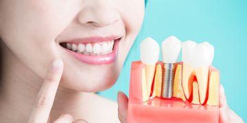O que são os implantes dentários de carga imediata?