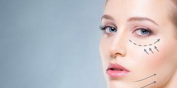 Ritidoplastia, ritidectomia ou lifting facial