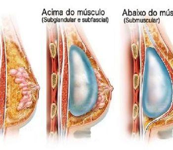 Por cima ou por baixo do músculo?