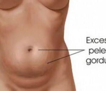 Perguntas frequentes antes da abdominoplastia.