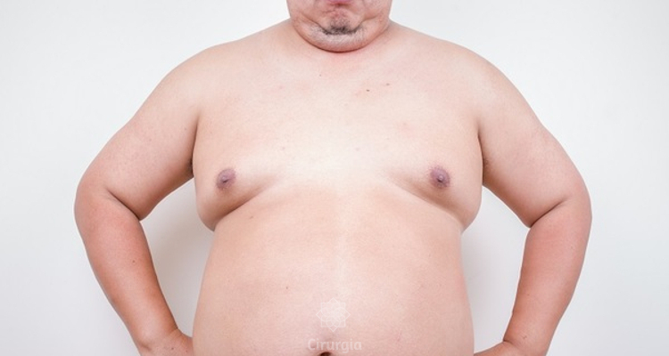 Homens com mamas, quais as causas?