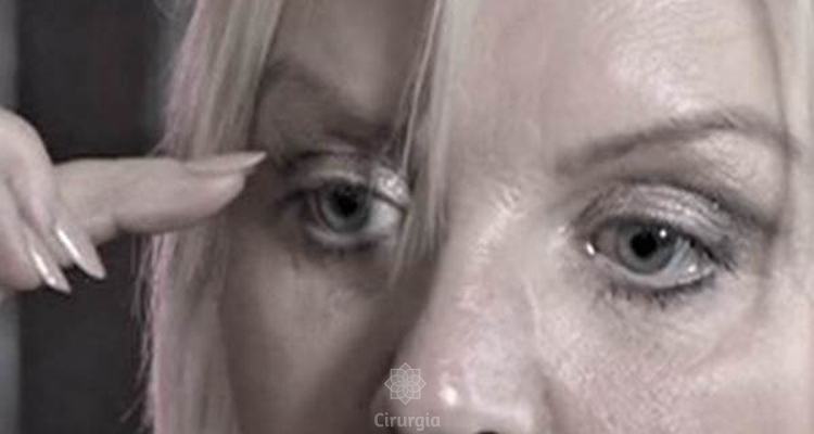 BLEFAROPLASTIA (cirurgia das pálpebras): Vaidade ou Necessidade?