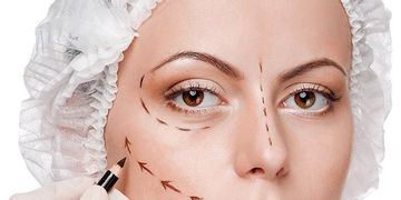 Blefaroplastia com elevação do terço médio da face