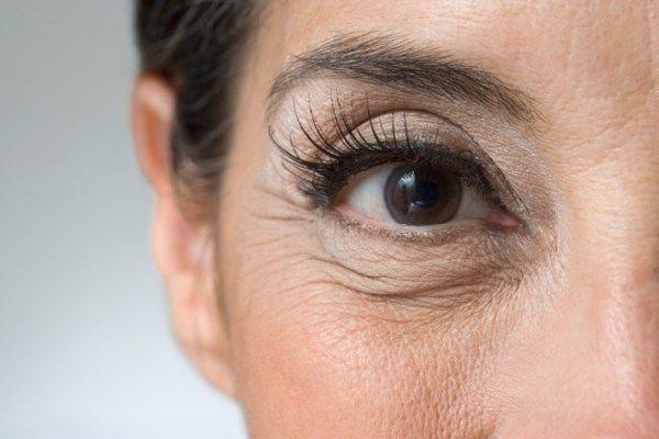 dicas-para-evitar-e-tratar-rugas-em-casa-e-com-o-seu-dermatologista.jpg