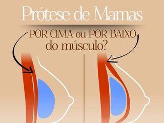 Próteses de Mama
