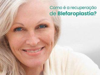Blefaroplastia-630259