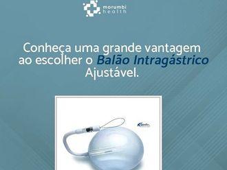Balão intragástrico-627063