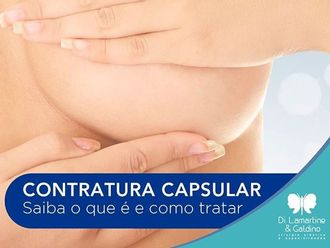 Mamoplastia de aumento-630307