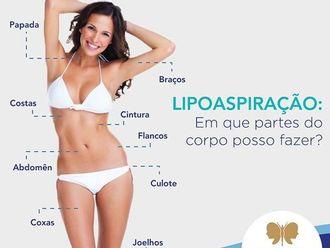 Lipoaspiração-630321