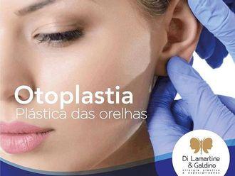 Otoplastia-630335
