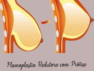 Mamoplastia-634975