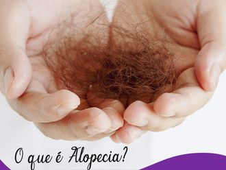 Alopecia-636325