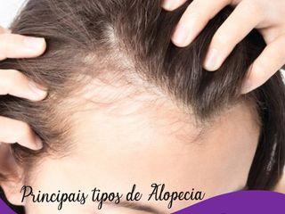 principais tipos de alopecia