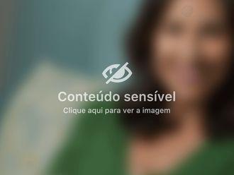 Abdominoplastia-636328