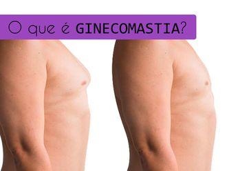 Ginecomastia-641423