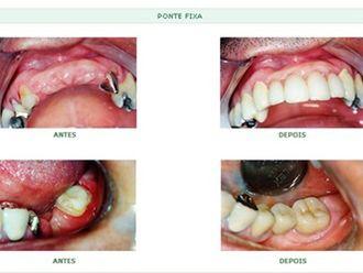 Odontologia estética-579603