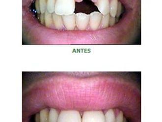 Odontologia estética-579605