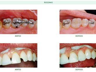 Odontologia estética-579608