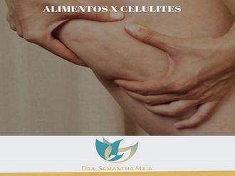 Tratamento celulite-630375