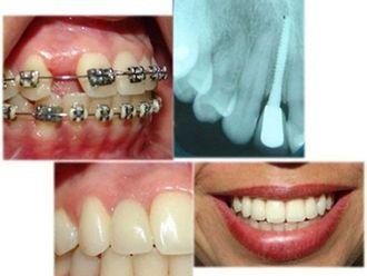 Cirurgia ortognatica-579607