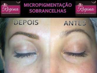 Micropigmentação-579583