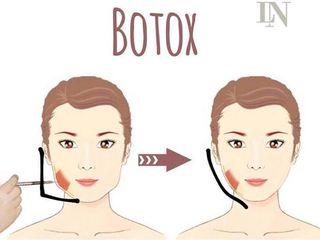 Botox para afinar o rosto