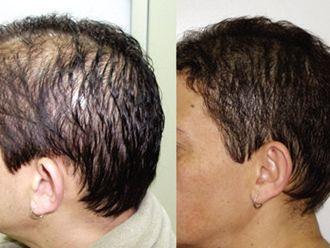 Tratamentos estéticos-579579