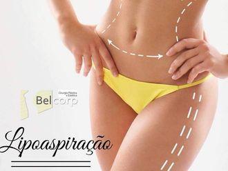 Lipoaspiração - 630392