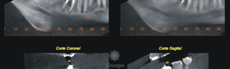 CMRO - Clínica Mineira de Radiologia Odontológica - 454667