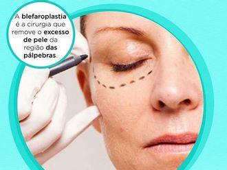 Blefaroplastia - 629439