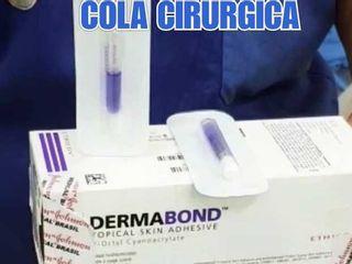 Cola Cirúrgica