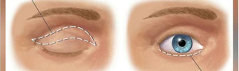 Blefaroplastia / Diminuição das Pálpebras